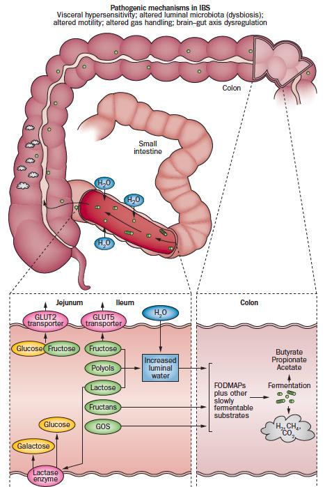 Tällä tavalla FODMAP-hiilihydraatit aiheuttavat oireita